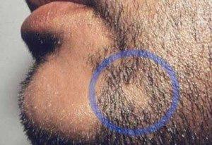 barba-chiazza-alopecia