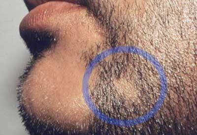 Chiazze nella barba: alopecia?